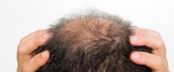 Che trattare capelli falsi